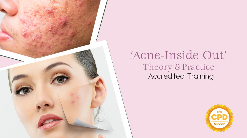 Acne Inside Out, Theory & Practice Accredited Training