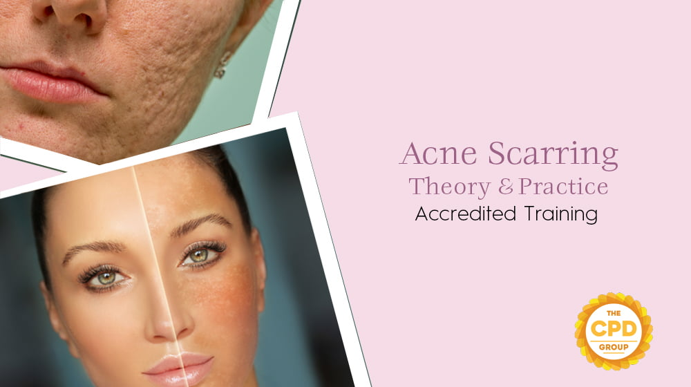 Acne Scarring Theory & Practice Accredited Training